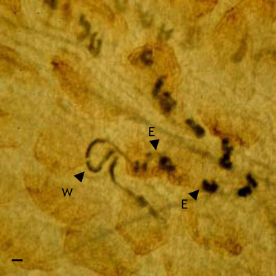 Strongyloides Spp